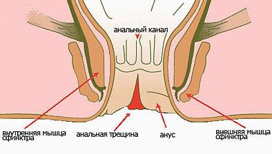 анальная трещина наружная лечение-эм1