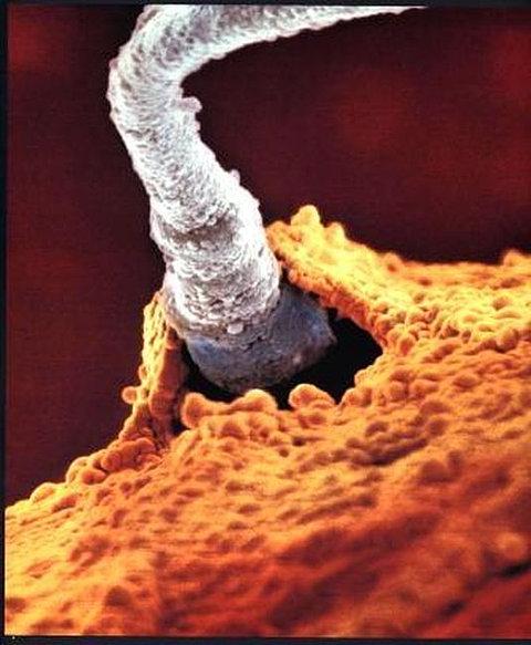 udalos-virastit-spermatozoid