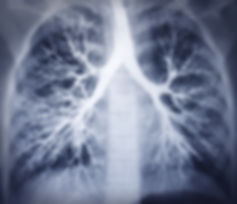 Bronchoscopy image. Chest X-ray. Healthy