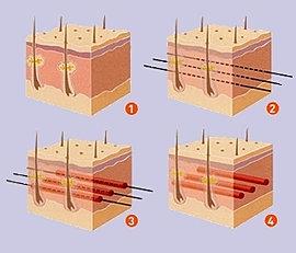 Схема 3Д-мезомоделирования кожи (3D мезонити)