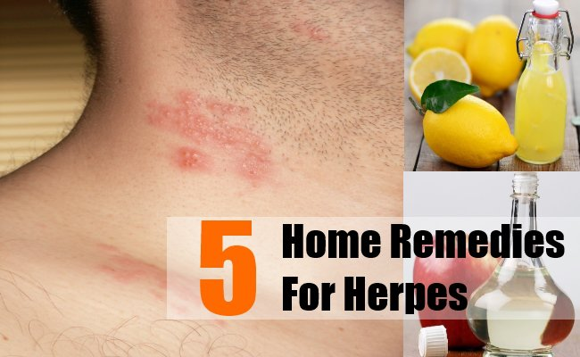Congratulate, Natural cure for herpes be