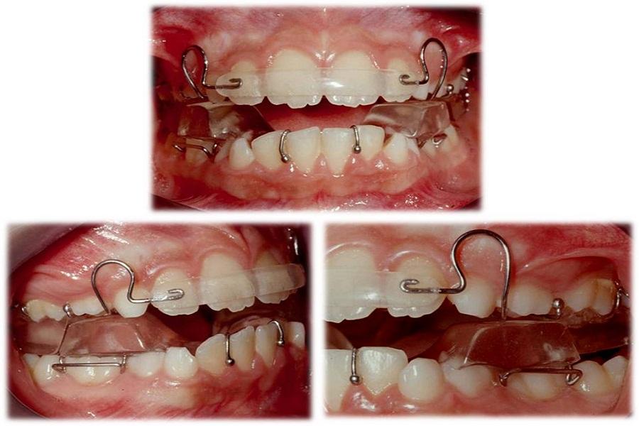 0ed862 for W de porter ortodoncia
