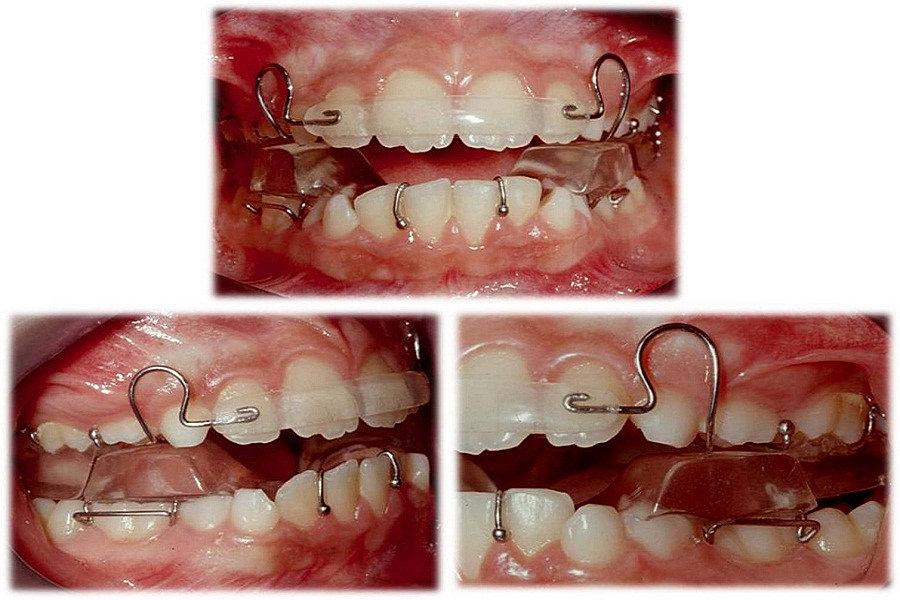 Ortoreding laboratorio de ortodoncia ortogn tica y for W de porter ortodoncia