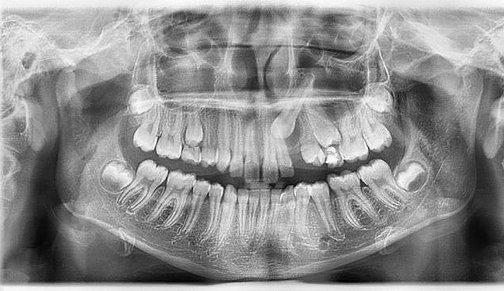 annaorthodontics | Impacted canines