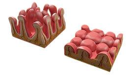 celiac-Disease.jpg