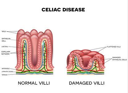 What Is Celiac Disease - Damaged vs heal