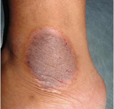 Psoriasis affects about 4 percent of the U 1