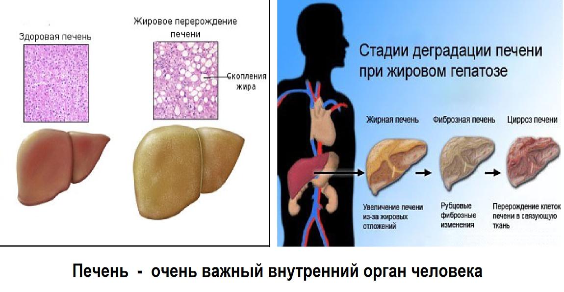 Что полезно при жировом гепатозе печени