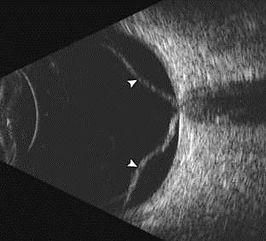 B scan image showing Retinal detachment.
