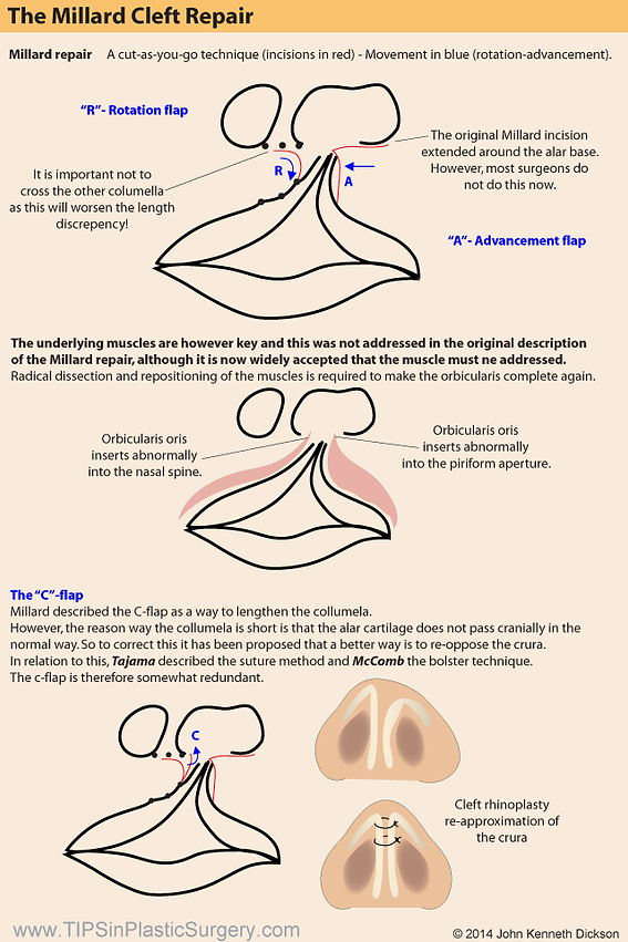 TIPS in Plastic Surgery   Head & Neck