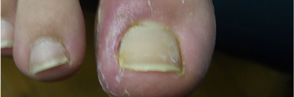 how to tell if ingrown toenail is infected
