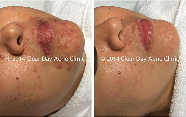 Chin Acne Before After Her Persistent Chin Acne