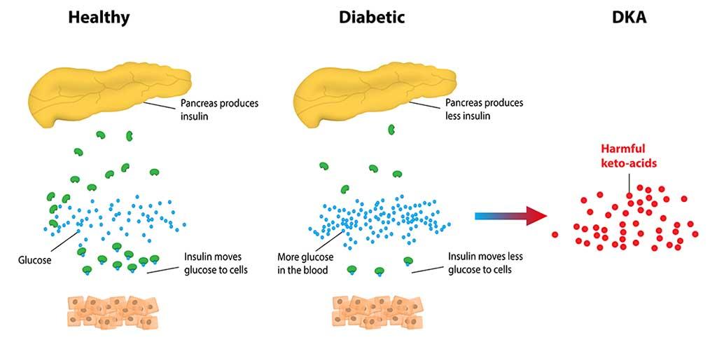 diabetic ketoacidosis treatment guidelines malaysia