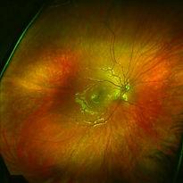 Retina Normal Wide Field.jpg