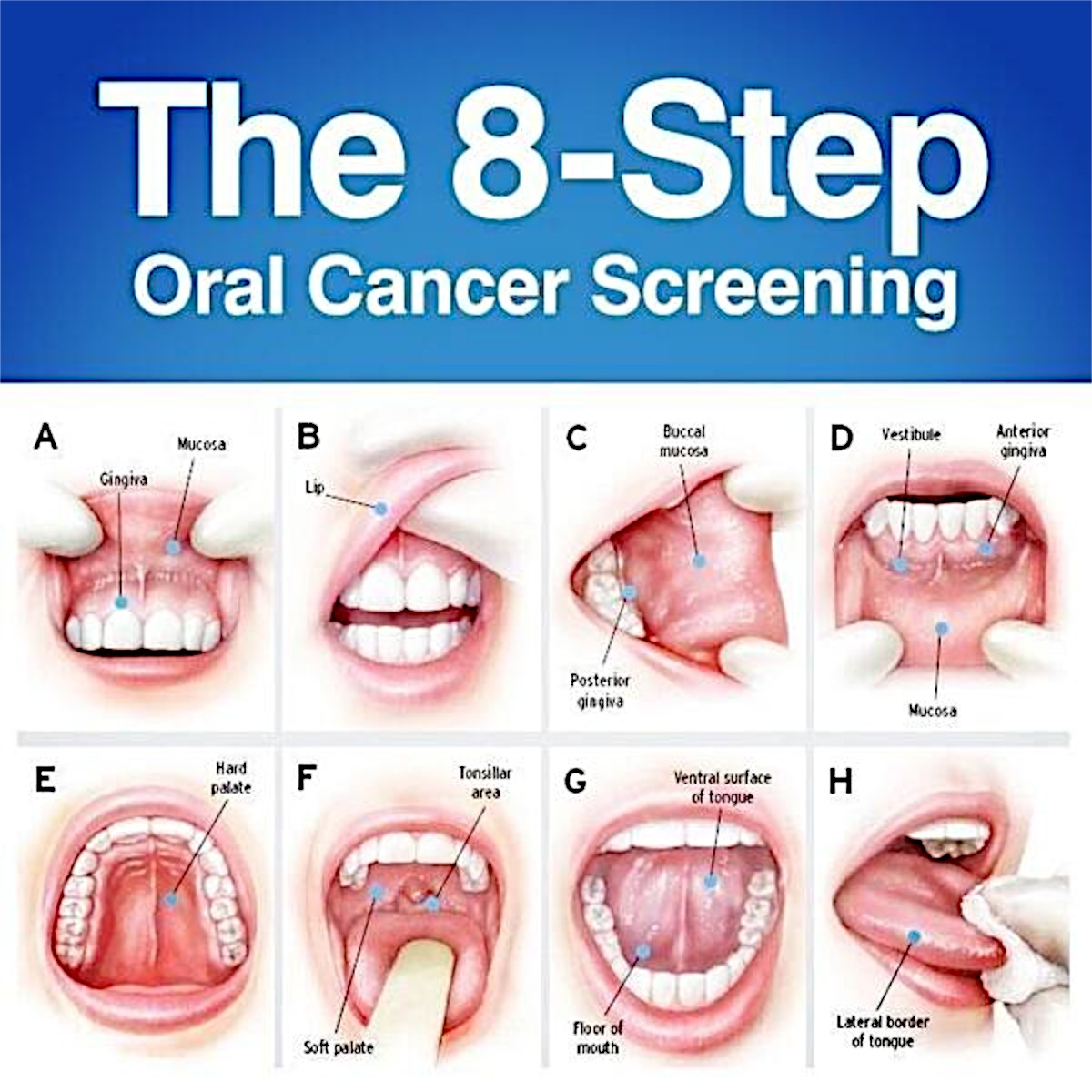 How to Check for Mouth Cancer at Home