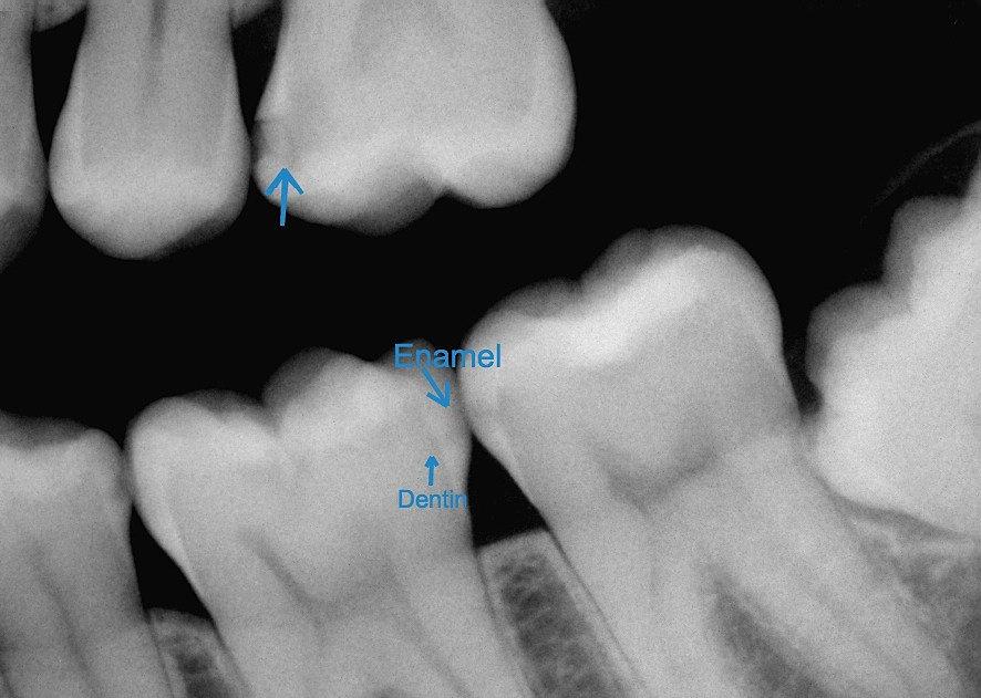Image result for interproximal cavity xrays