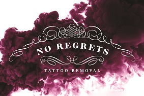 Tattoo Removal Birmingham, West Midlands, Staffordshire