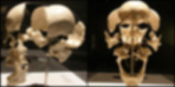 Michael Marc ostéopathe Chartres