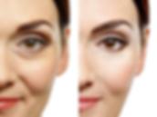 Facelift Acupuncture