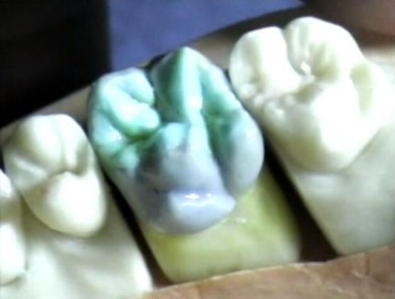 Primer molar superior izquierd