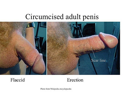 the mature penile foreskin and hygiene