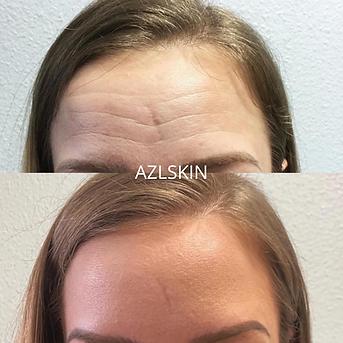 AZLSKIN.png