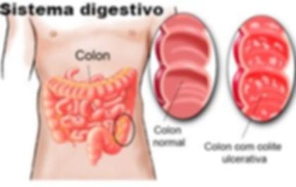 No sistema digestivo o temazcal ou tenda do suor funciona por melhorar a atividade intestinal, que é benéfica para limpar, ajuda com casos de colite nervosa.