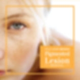 Applicaion to treat Pigmentation