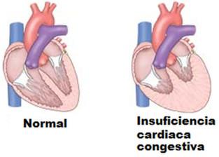 Resultado de imagem para Insuficiência Cardíaca Congestiva