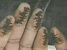 Stitched fingers