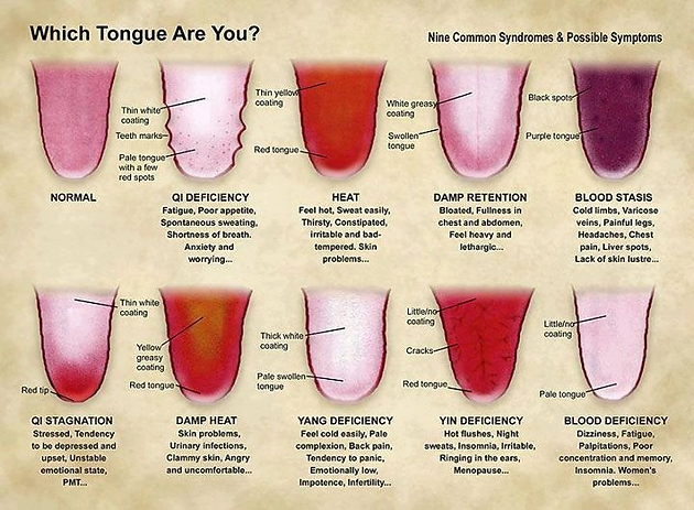 which tongue are you? | shen acupuncture | acupuncture clinic in, Human Body