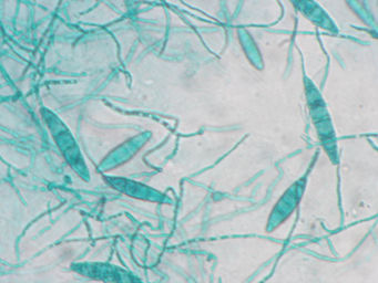 Exame micologico