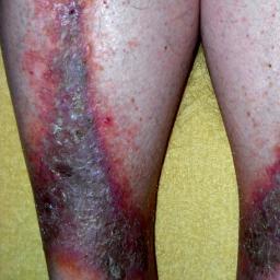stasis-dermatitis-on-legs.jpg