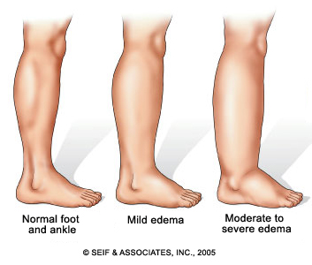 tips for dealing with edema caused by congestive heart failure, Skeleton