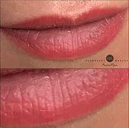 Healed result of PMU of lips
