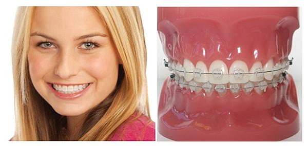Ortodoncia con brackets est ticos zafiro cl nica dental for W de porter ortodoncia