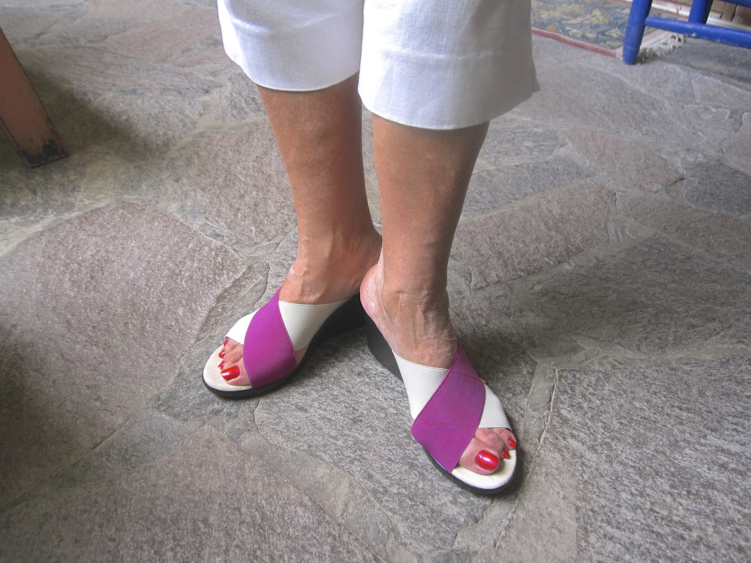 footwear solution for bunions what a pretty relief