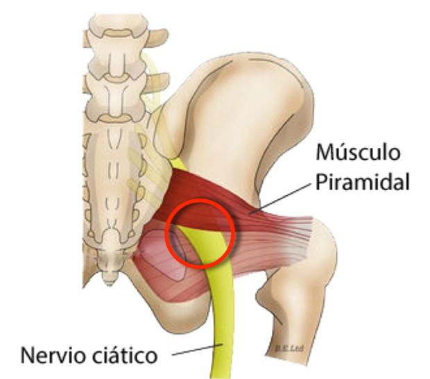 El dolor en el escroto de por la osteocondrosis