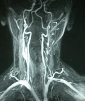 La vena en el pie la ampliación sobre la cadera el dolor