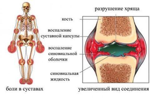 Эффективное очищение суставов болезни артралгия коленного сустава