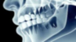 radiologia-dental.jpg