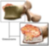 osteosarcoma.jpg