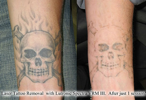 laser tattoo removal denver