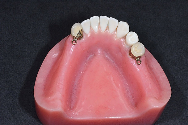Clear Frame Partial Denture Complete And Partial Dentures