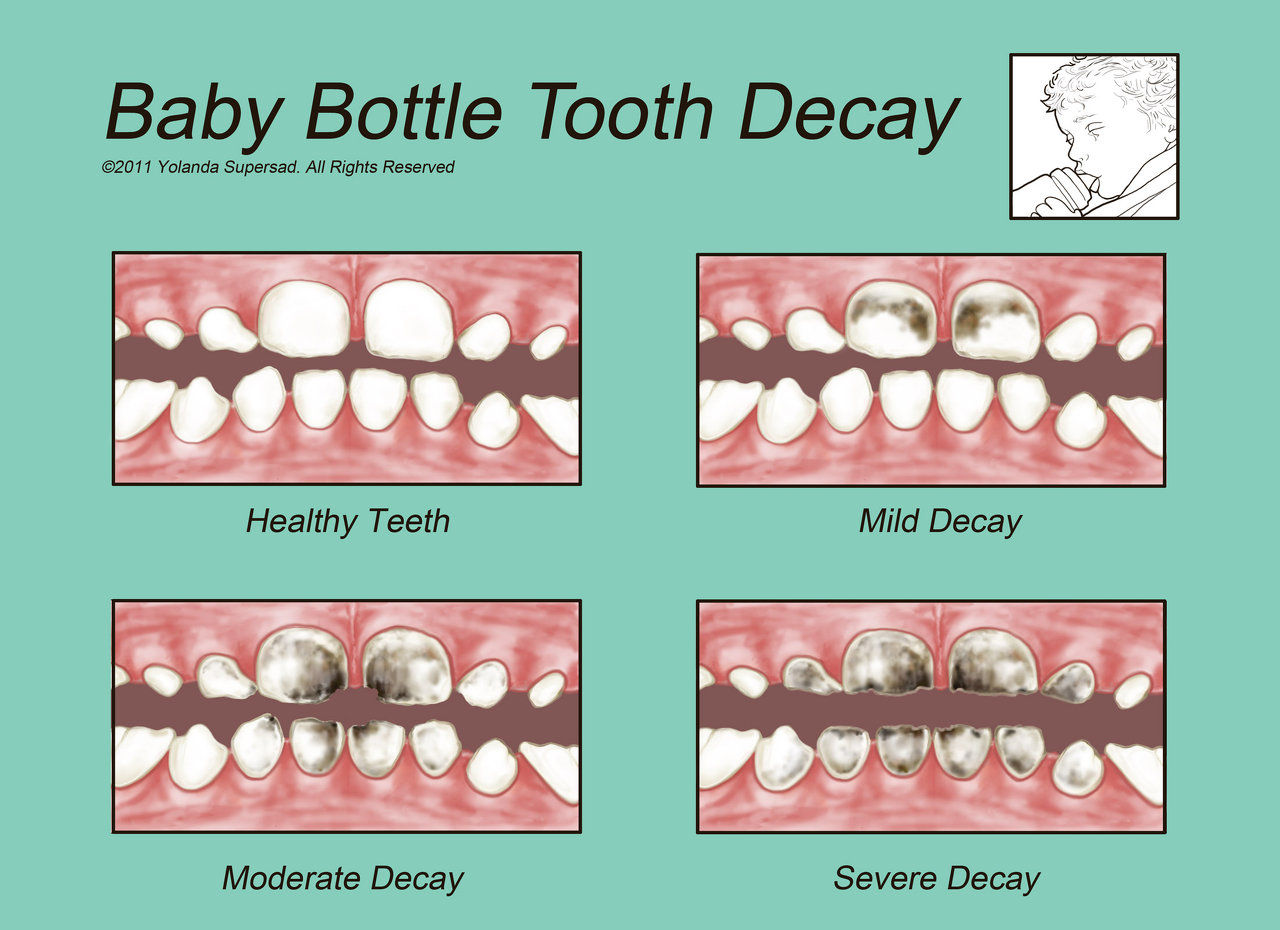 an examination of caries and decaying teeth How to fix cavities on front teeth  all children should have 1st dental examination at time of 1st b'day (best w pediatric dental specialist--pedodontist).