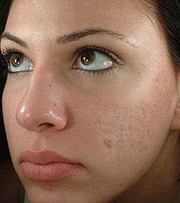 лазерная омоложение кожи лица