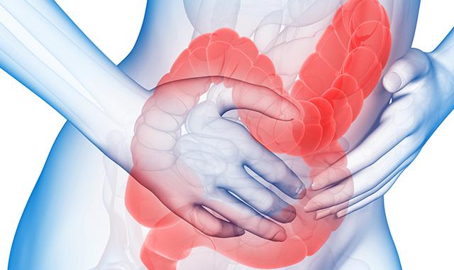 Картинки по запросу Irritable Bowel Syndrome