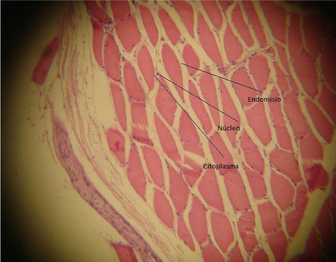 Músculo esqueletico transv.