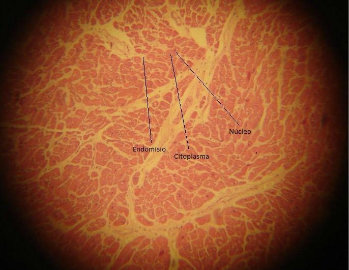 Músculo cardiaco transv.