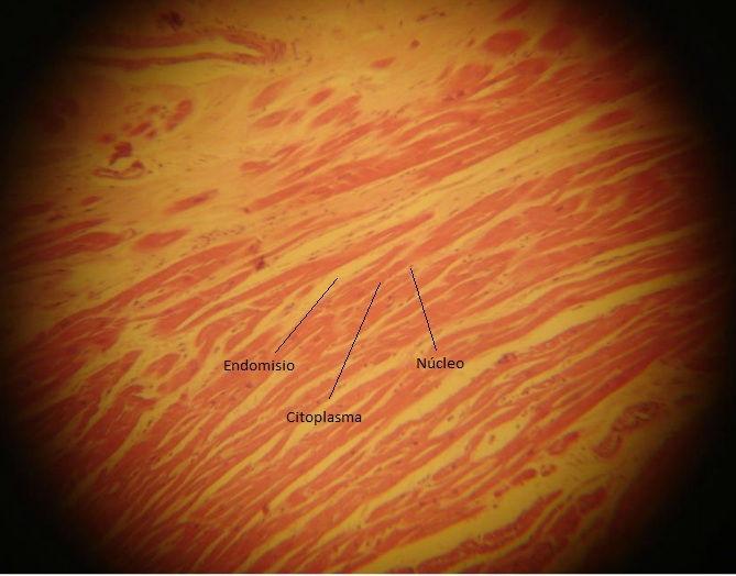 Músculo cardiaco long.